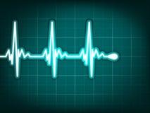 för eps-hjärta för 8 electrocardiogram spår för human Arkivbilder