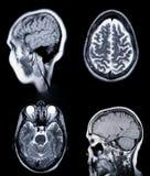 för magnetisk verklig resonans mramri för angiogram royaltyfria foton