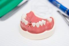 För munwhit för modell medicinska maxillary tänder Royaltyfria Bilder