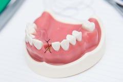 För munwhit för modell medicinska maxillary tänder Royaltyfri Bild
