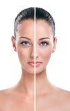 För och efter - hud arkivfoto