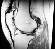 För osteoarthrosismenisk för knä sträng mri för patologi royaltyfri foto