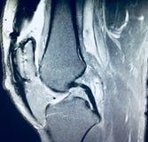 För osteoarthrosismenisk för knä sträng mri för patologi arkivfoto