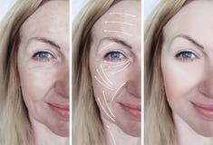 För skrynklakorrigering för kvinna ansikts- pil för tillvägagångssätt för skillnad före och efter arkivfoton