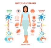 För vektorillustration för multipel sklero anatomiskt diagram, medicinsk intrig royaltyfri illustrationer
