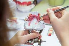 Förbättrar tandprotesen Fotografering för Bildbyråer