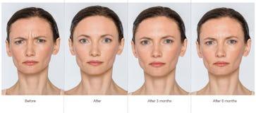 Före och efter anti--ålder begrepp Arkivfoto