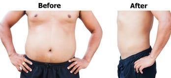 Före och efter fet buk för kroppman fotografering för bildbyråer