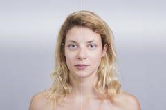 Före och efter hudbehandling Royaltyfri Foto