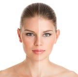 Före och efter kosmetisk operation Royaltyfri Fotografi