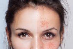 Före och efter kosmetisk operation nätt kvinnabarn för utomhus- stående arkivfoton