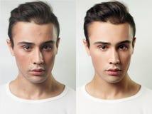 Före och efter kosmetisk operation Ung nätt manstående royaltyfria foton