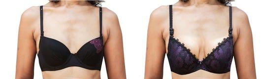 Före och efter kvinnors bröstkirurgi royaltyfri fotografi
