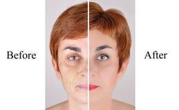 Före och efter skönhetbehandling royaltyfri foto
