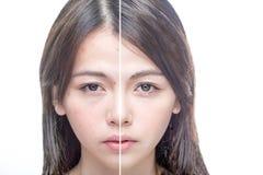 Före och efter skönhetstående royaltyfri fotografi