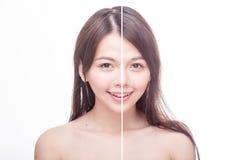 Före och efter skönhetstående Fotografering för Bildbyråer
