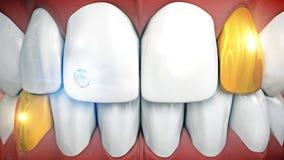 Föregående tänder med gemstoneimplantatet och eyeteeth i guld Royaltyfri Fotografi