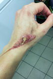 Förfärliga brännskador på den kvinnliga handen Fotografering för Bildbyråer