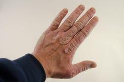 Förvärrande av psoriasins i händerna Arkivfoto