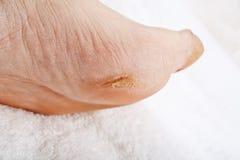 Füße, die ein pedicure benötigen Stockfotos