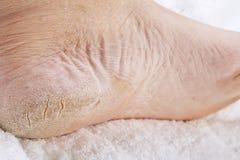 Füße, die ein pedicure benötigen Stockbilder