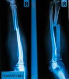Faccia i raggi x dell'asse di frattura di immagine del raggio & dell'osso ulnare per un medica Fotografia Stock