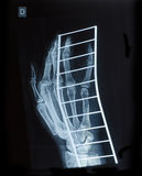 Faccia i raggi x dell'immagine della mano umana una frattura sul supporto del metallo Immagine Stock
