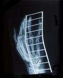 Faccia i raggi x dell'immagine della mano umana una frattura sul supporto del metallo Fotografia Stock Libera da Diritti