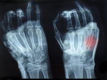 Faccia i raggi x dell'immagine delle mani umane con la mano superiore indicata il rosso Fotografia Stock Libera da Diritti