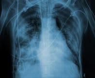Faccia i raggi x dell'immagine di un paziente con l'affezione polmonare illustrazione vettoriale