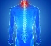 Faccia i raggi x della vista di dolore della spina dorsale - trauma delle vertebre Fotografie Stock