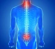 Faccia i raggi x della vista di dolore della spina dorsale - trauma delle vertebre Immagini Stock