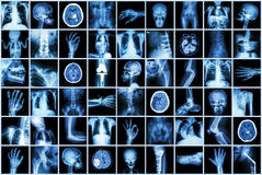 Faccia i raggi x di multipart dell'adulto e bambino e malattia (intestino di frattura di osteoartrite del calcolo renale del colp Immagini Stock Libere da Diritti
