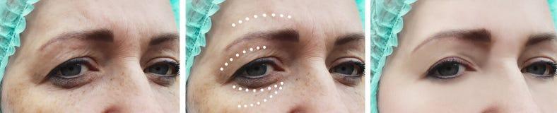 Facciale femminile corruga la rigenerazione paziente di correzione prima e dopo la dermatologia di procedure del collage di effet fotografie stock libere da diritti