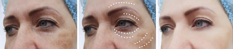 Facciale femminile corruga la rigenerazione paziente di correzione prima e dopo le procedure del collage di effetto fotografie stock libere da diritti