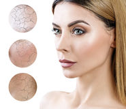 Face of adult woman with dry skin in circles. royalty free stock photo