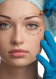 Face antes da operação da cirurgia plástica fotos de stock royalty free