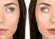 Woman before and after retouch Stock Image