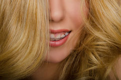 Face of beautiful woman with long hair and braces Stock Photo