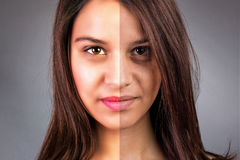 Face of beautiful young woman before and after retouch Royalty Free Stock Photos