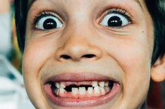 Face of boy smiling with missing teeth. Close up of young boy making a funny face among with missing teeth Royalty Free Stock Images