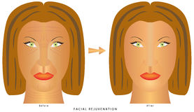 Face changes wrinkles Royalty Free Stock Photos