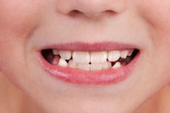 Face of a child with an open mouth and teeth. Detail of the face of a child with an open mouth and teeth stock images