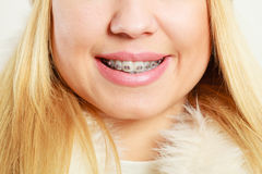 Face with dental braces Stock Photography