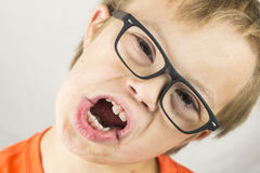 The Face of Downs Syndrome Royalty Free Stock Photography