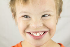 The Face of Downs Syndrome Royalty Free Stock Photo