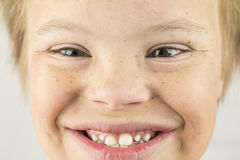 The Face of Downs Syndrome Royalty Free Stock Photos