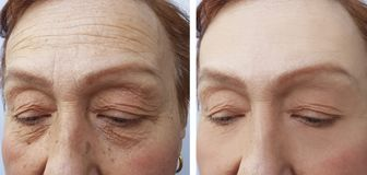 Face of an elderly surgery woman wrinkles results dermatology treatment face collagen ,before and after procedures. Face of an elderly woman wrinkles face before stock image