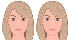 Free Face Front_Jaw Asymmetry Correctiom Surgery Face Stock Photos - 142053423