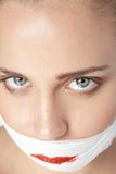 Face of a girl after plastic surgery Stock Images